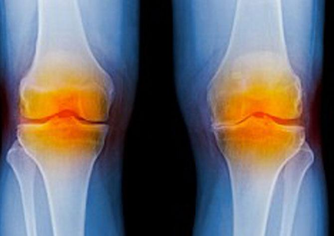 Facts About Knee Replacement